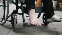 Patient with broken leg on wheelchair in hospital