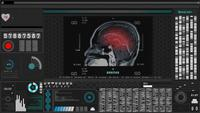 Brain MRI scan or x-ray film in futuristic technology.