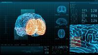 3D-hjärna och vitala tecken med neurologisk display för statistisk data